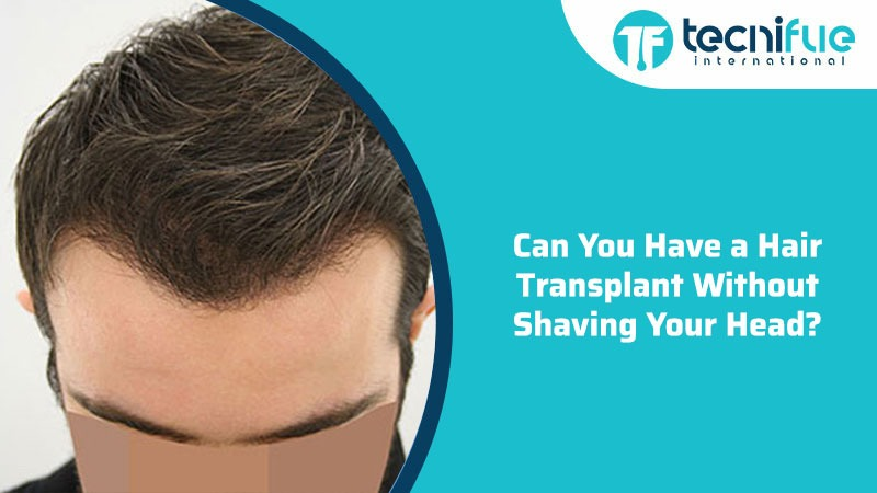 Can You Have A Hair Transplant Without Shaving Your Head?
