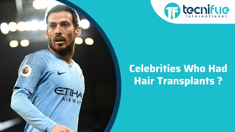 Celebrities Who Had Hair Transplants?, Celebrities Who Had Hair Transplants?