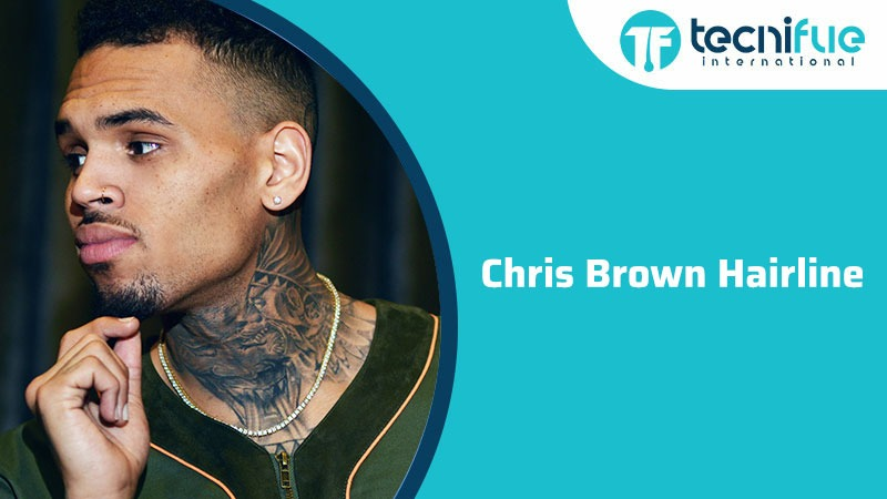 Chris Brown Hairline