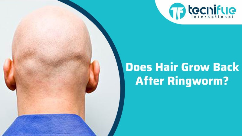 Does Hair Grow Back After Ringworm?