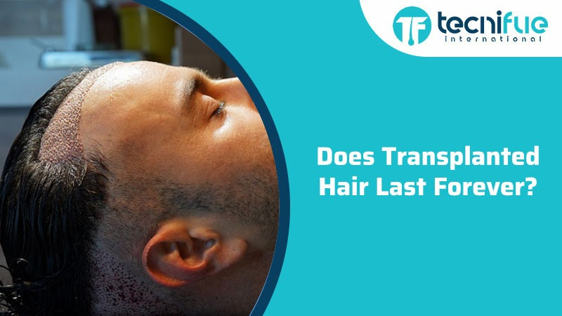 Does Transplanted Hair Last Forever, Does Transplanted Hair Last Forever