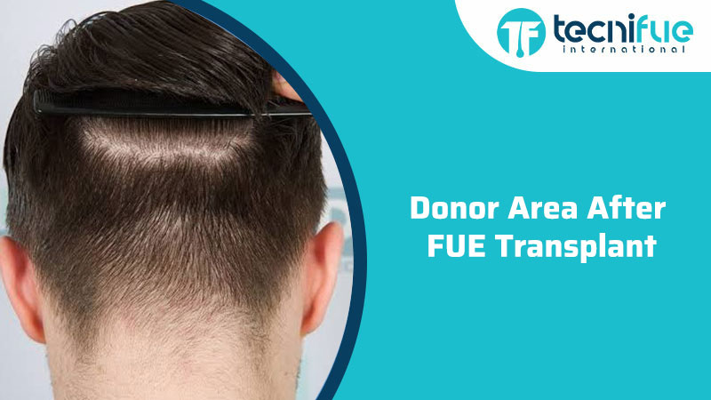 Donor Area After Fue Transplant