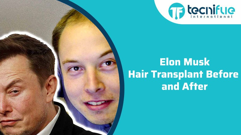 Elon Musk Hair Before And After, Elon Musk Hair Transplant Before And After