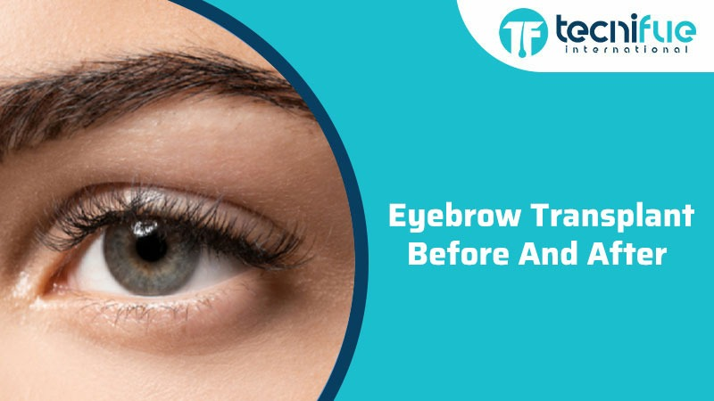 Eyebrow Transplant Before And After, Eyebrow Transplant Before And After