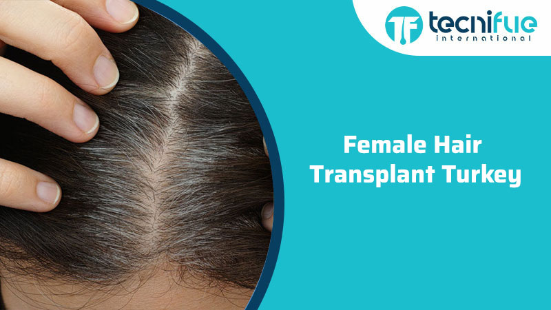 Female Hair Transplant Turkey, Female Hair Transplant Turkey