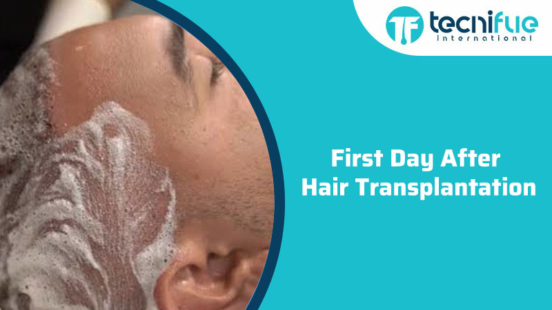First Day After Hair Transplantation