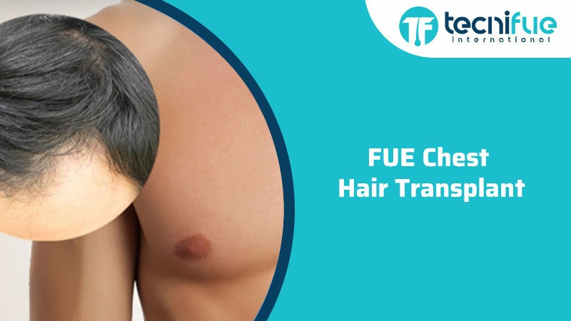 FUE Chest Hair Transplant