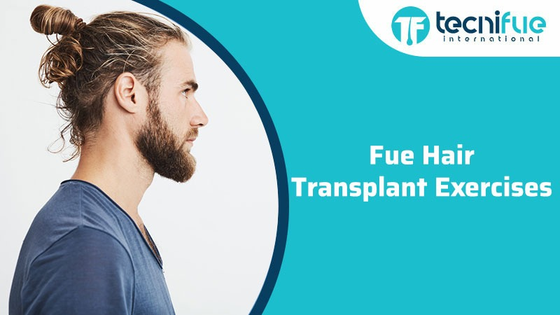 FUE Hair Transplant Exercise, FUE Hair Transplant Exercise