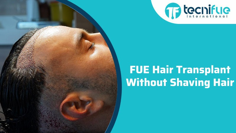 Fue Hair Transplant Without Shaving Hair