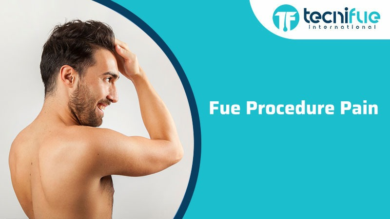 FUE Procedure Pain, FUE Procedure Pain