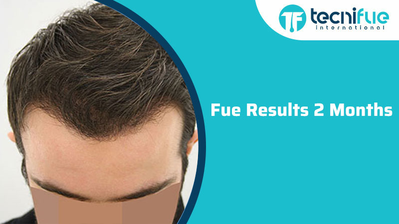 Fue Results 2 Months