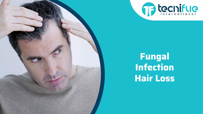 Fungal Infection Hair Loss