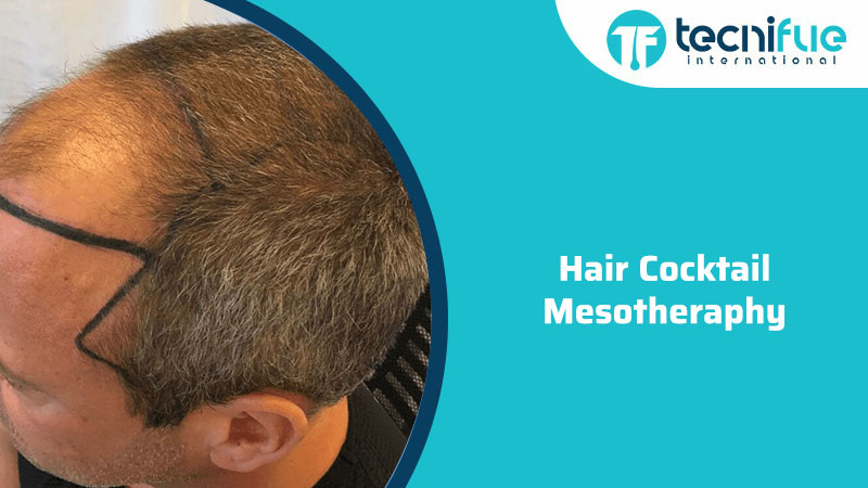 Hair Cocktail Mesotheraphy