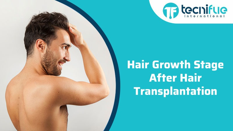 Hair Growth Stage After Hair Transplantation, Hair Growth Stage After Hair Transplantation
