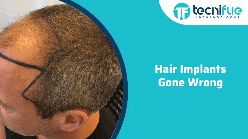 Hair Implants Gone Wrong