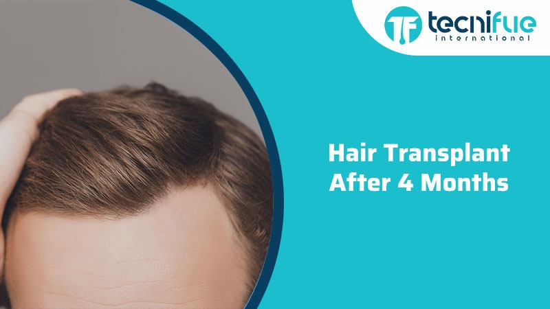 Hair Transplant After 4 Months
