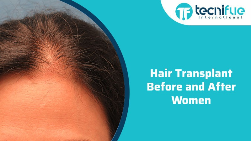 Hair Transplant Before and After Women, Hair Transplant Before and After Women