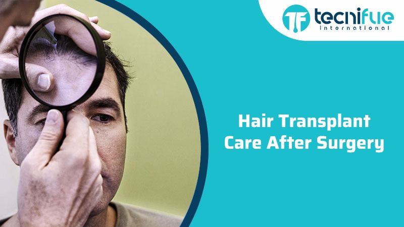 Hair Transplant Care After Surgery