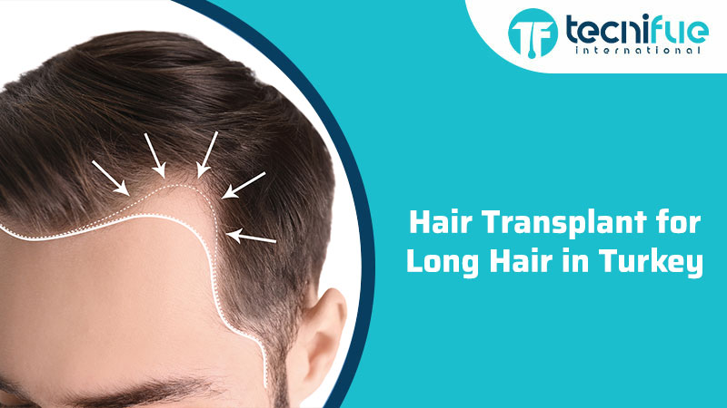 Hair Transplant For Long Hair In Turkey, Hair Transplant For Long Hair In Turkey