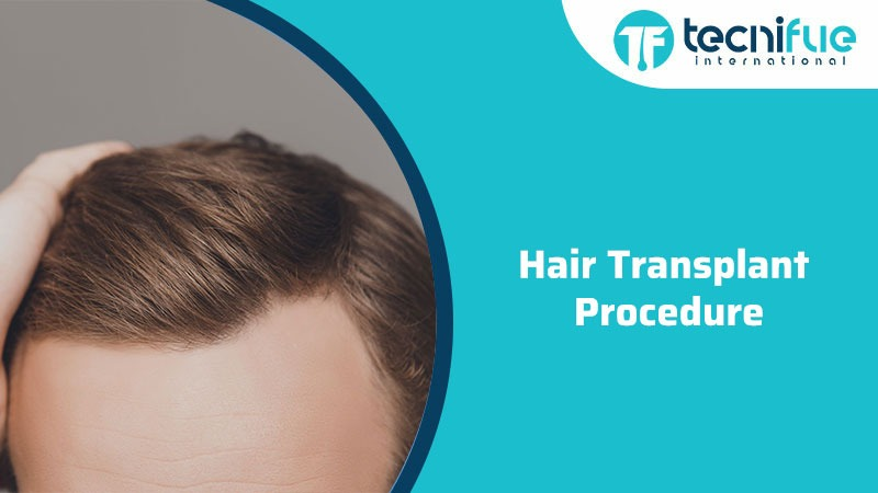 Hair Transplant Procedure, Hair Transplant Procedure