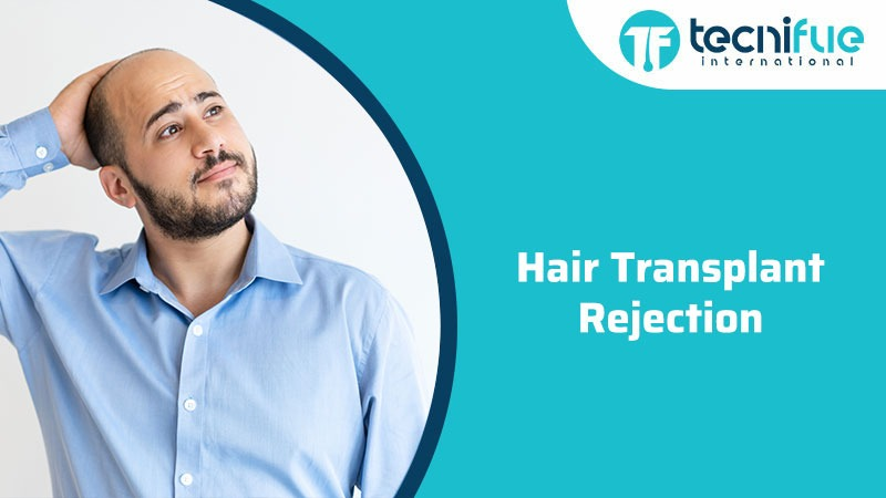 Hair Transplant Rejection, Hair Transplant Rejection