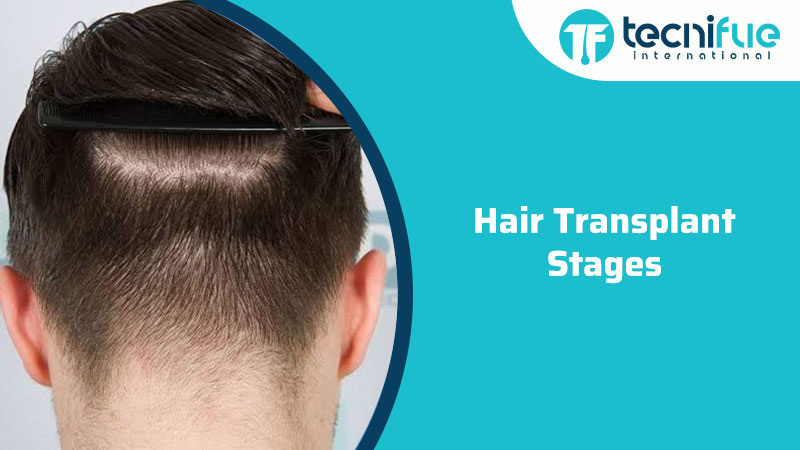 Hair Transplant Stages, Hair Transplant Stages