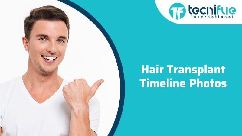 Hair Transplant Timeline Photos, Hair Transplant Timeline Photos