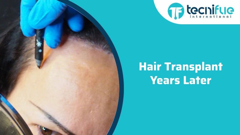 Hair Transplant Years Later