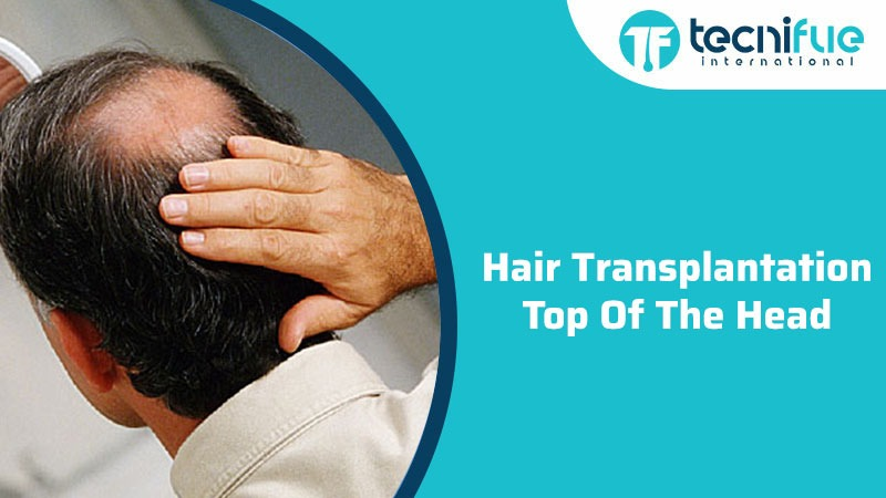 Hair Transplantation Top of The Head, Hair Transplantation Top of The Head