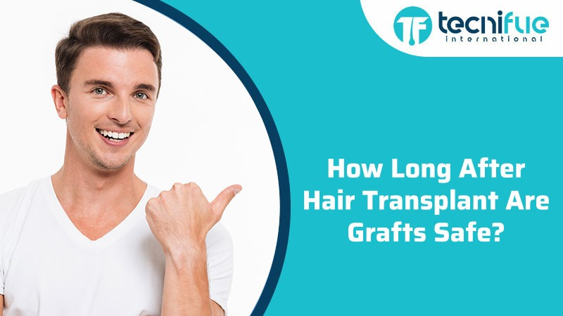 How Long After Hair Transplant Are Grafts Safe?