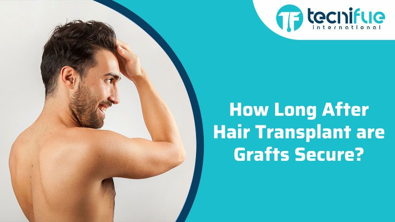 How Long After Hair Transplant Are Grafts Secure