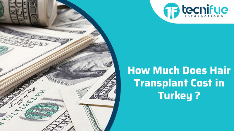 How Much Does Hair Transplant Cost in Turkey, How Much Does Hair Transplant Cost in Turkey?