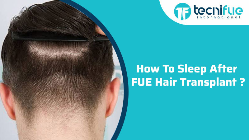 How To Sleep After Fue Hair Transplant