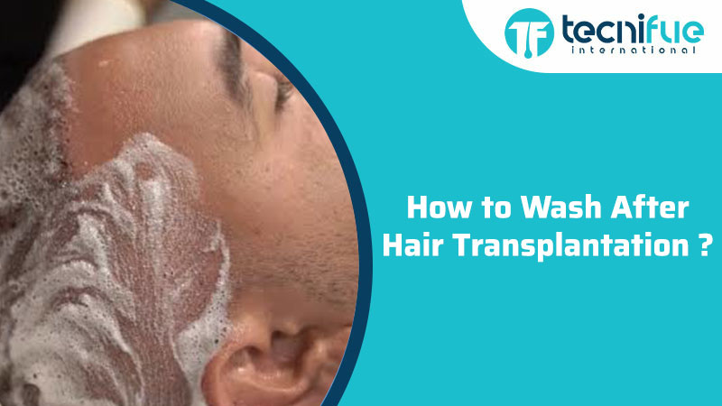 How To Wash After Hair Transplantation?