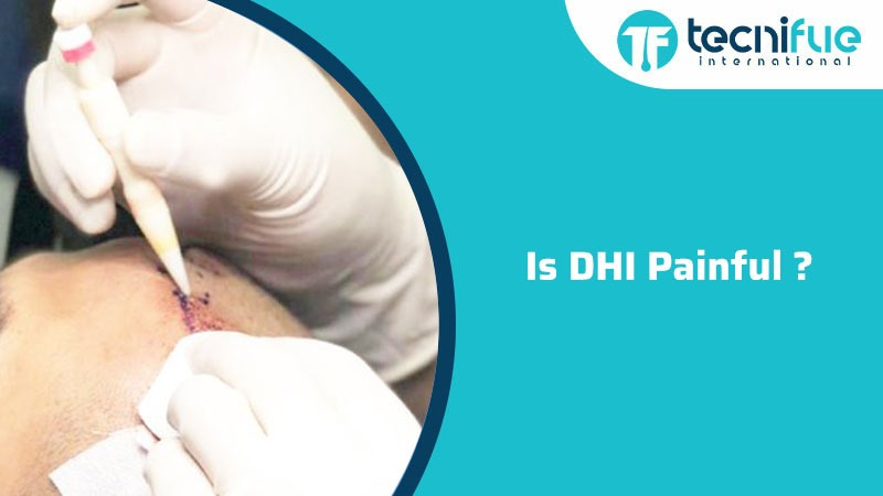 Is DHI Painful?