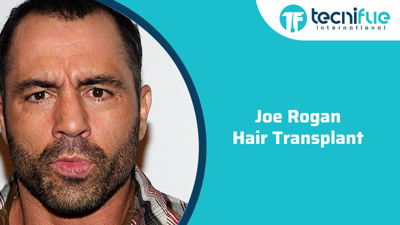 Joe Rogan Hair Transplant, Joe Rogan Hair Transplant
