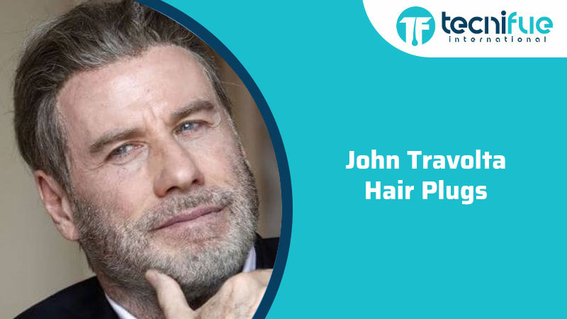 John Travolta Hair Plugs, John Travolta Hair Plugs