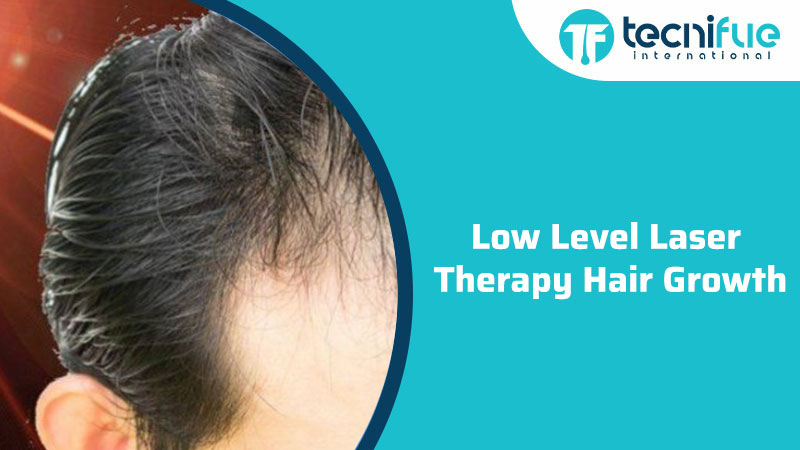 Low Level Laser Therapy Hair Growth, Low Level Laser Therapy Hair Growth