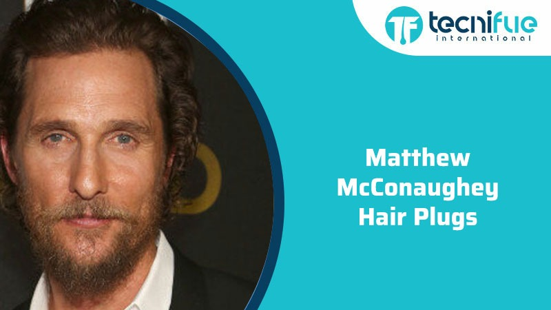 Matthew Mcconaughey Hair Plugs, Matthew Mcconaughey Hair Plugs