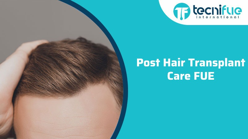 Post Hair Transplant Care FUE