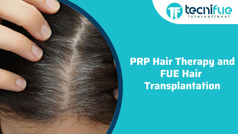 PRP Hair Therapy and FUE Hair Transplantation