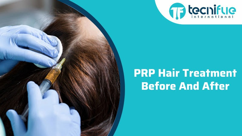 PRP Hair Treatment Before And After
