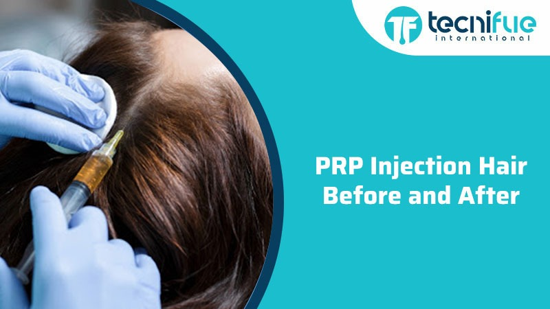 PRP Injection Hair Before And After