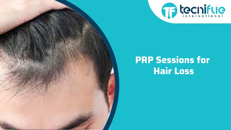 PRP Sessions for Hair Loss