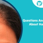 Questions And Answers About Hair Loss
