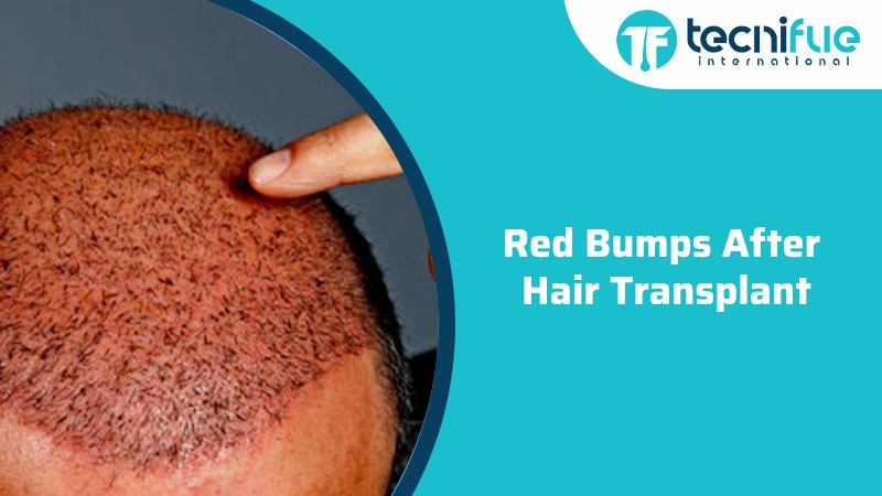 Red Bumps After Hair Transplant, Red Bumps After Hair Transplant