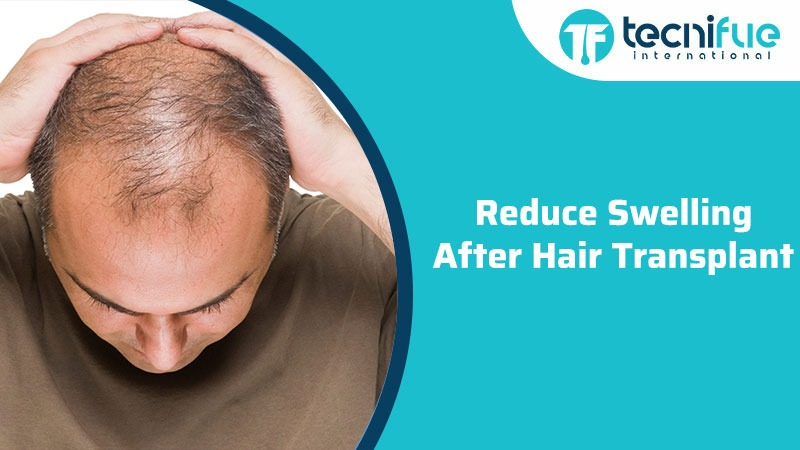 Reduce Swelling After Hair Transplant, Reduce Swelling After Hair Transplant