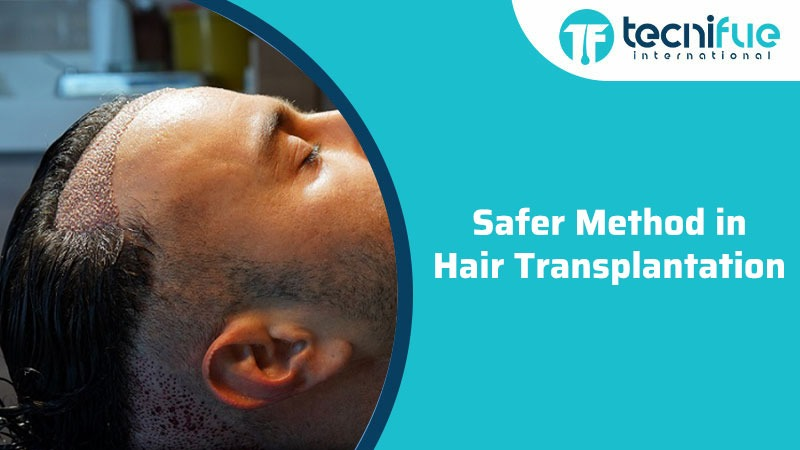Safer Method in Hair Transplantation, Safer Method in Hair Transplantation