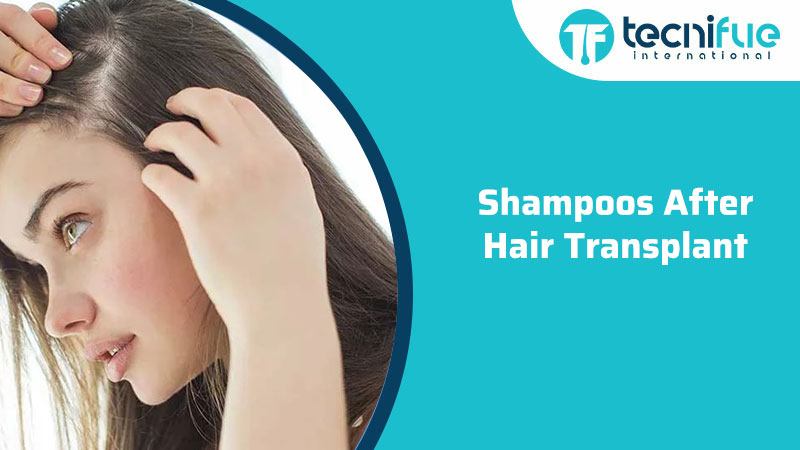 Shampoos After Hair Transplant, Shampoos After Hair Transplant