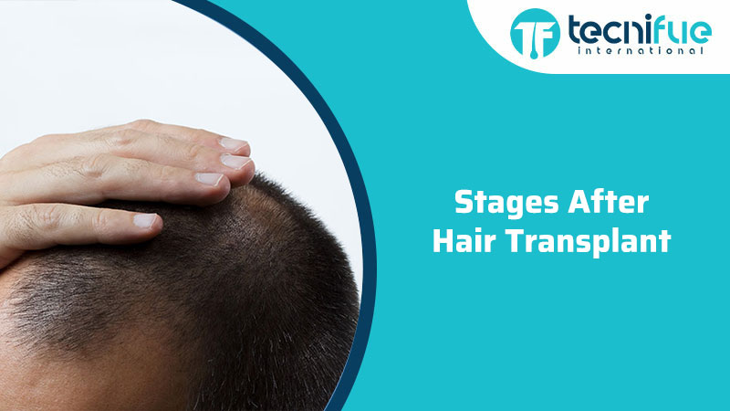 Stages After Hair Transplant, Stages After Hair Transplant